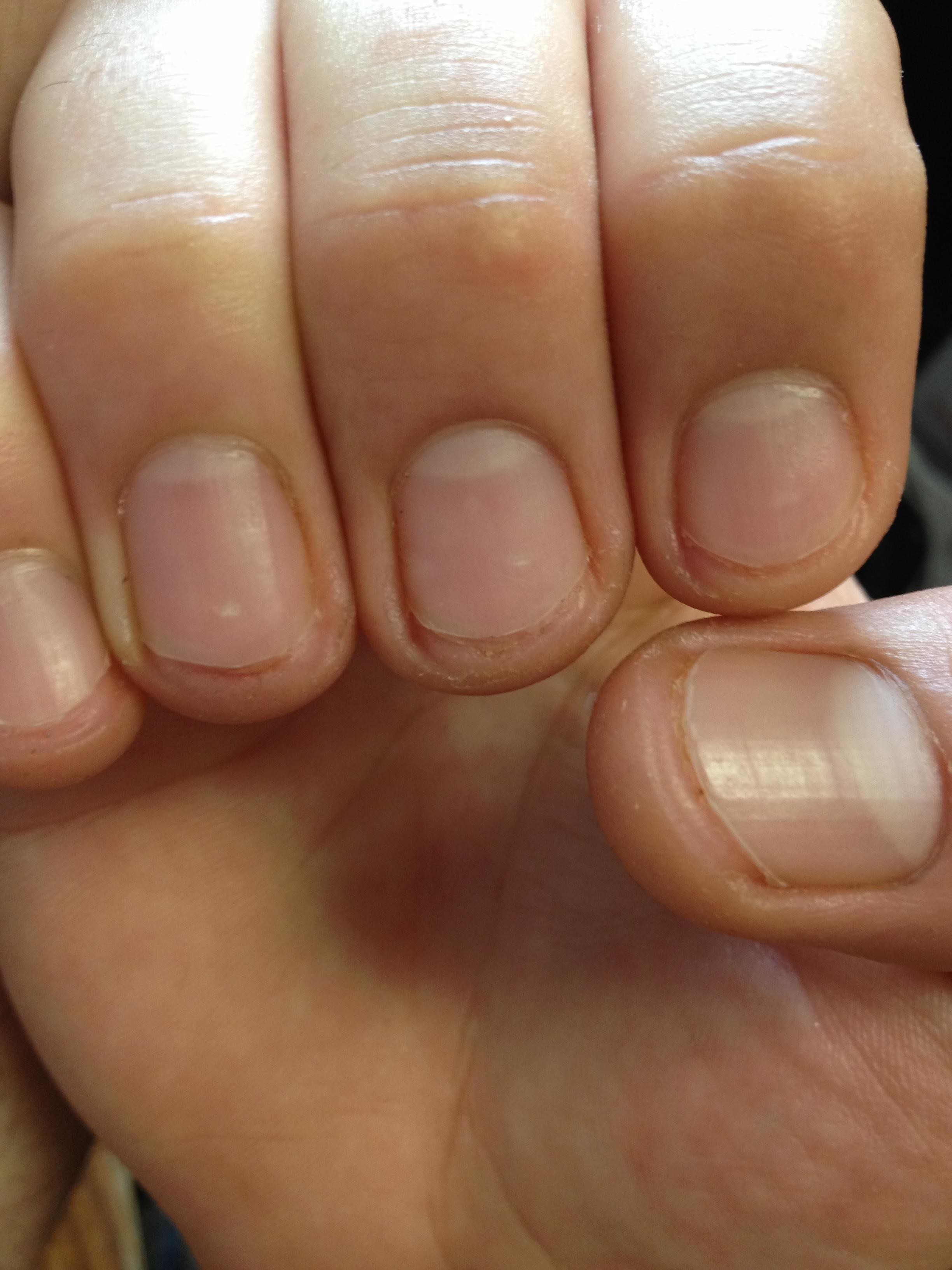 8 Fingernails Cut Way Too Short and 2 Cut Just Right | The ...